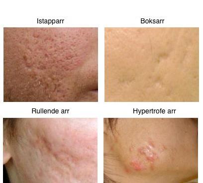 akne arr behandling